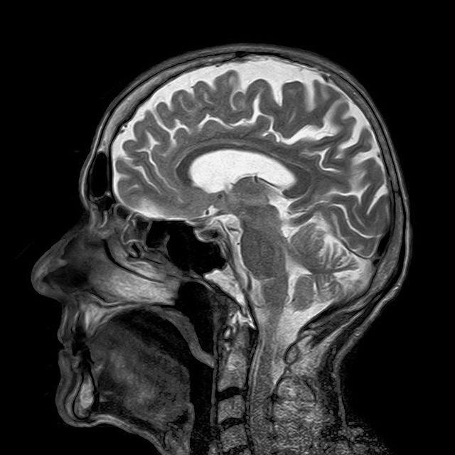 Badanie Rezonansem Magnetycznym Głowy w Poznaniu