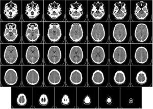 Opisy zdjęć tomografii komputerowej na odległość