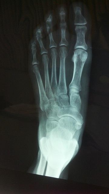Zdjęcie rentgenowskie stopy- opis