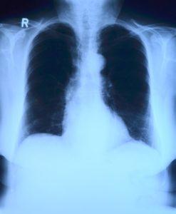 Teleradiologia - opis zdjęć rentgenowskich