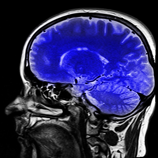 Opis badania Tomografii Komputerowej
